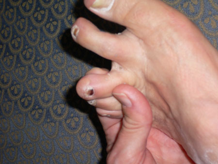 Marathoner's Toe